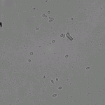 10x magnification of yeast and unknown contaminant in 20% D2O.