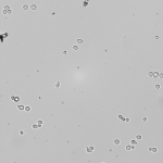 Yeast in 80% D2O at 10x magnification (and 1.6x addition).