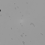 Yeast grown in 60% D2O YPD and viewed at 10x (with 1.6x magnification).