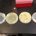Comparison of E coli colonies grown on different LB media